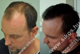 A hajbeültetés végleges megoldást jelenthet a kopaszságra